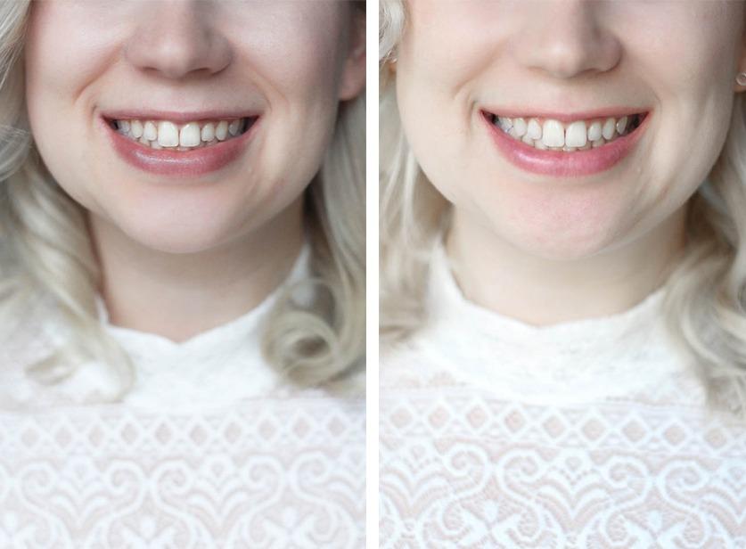 listerine-advanced-white-whitesmilechallenge-smile-blonde-waves-lace-puppenzirkus-mittwochsmanege-beauty-collage-vorher-nachher