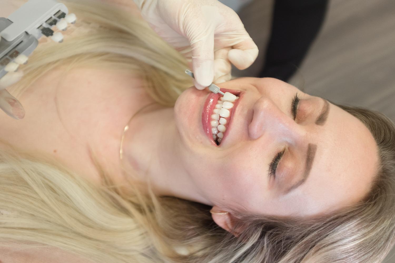 Einmal Zahnfarbe abgleichen, bitte!