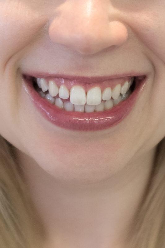 Zahnbleaching mit der ZOOM! Methode von Philips: direkt danach
