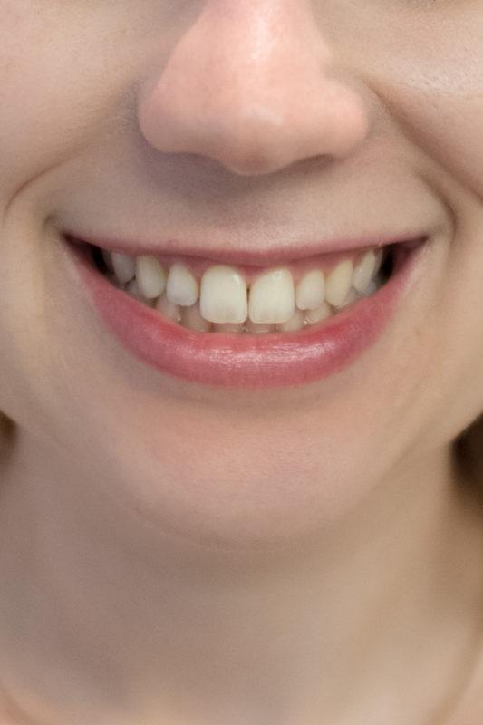 Zahnbleaching mit der ZOOM! Methode von Philips: direkt davor
