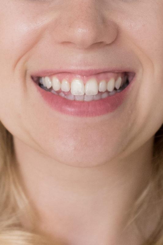 Zahnbleaching ZOOM! Methode Ergebnis 3 Monate später